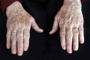Can Intense Pulsed Light Help My Hands? By Beauty Salon Hobart - Call Us On (03) 6223 3433
