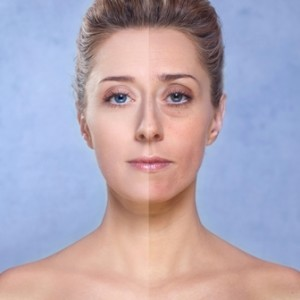 When Should I Consider Facial Fillers?