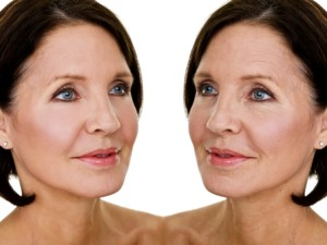 How You Can Safely Get Rid Of Unwanted Facial Wrinkles