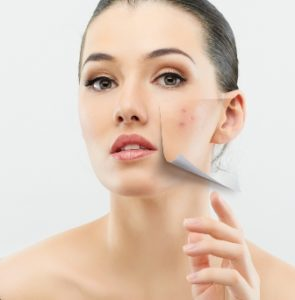 How To Tame Acne And Love Your Skin